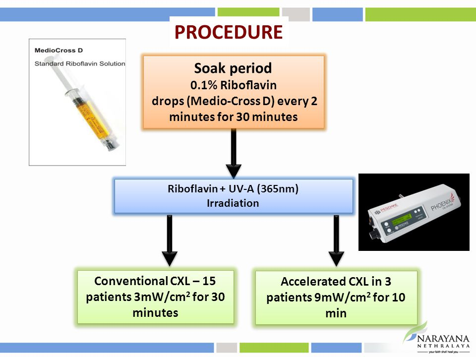 Soak period 0.1% Riboflavin drops (Medio-Cross D) every 2 minutes for 30 minutes Soak period 0.1% Riboflavin drops (Medio-Cross D) every 2 minutes for 30 minutes Accelerated CXL in 3 patients 9mW/cm 2 for 10 min PROCEDURE Conventional CXL – 15 patients 3mW/cm 2 for 30 minutes Riboflavin + UV-A (365nm) Irradiation Riboflavin + UV-A (365nm) Irradiation