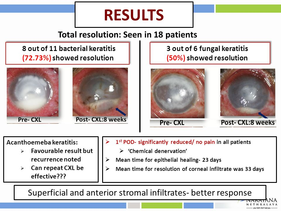 RESULTS Total resolution: Seen in 18 patients 8 out of 11 bacterial keratitis (72.73%) showed resolution 3 out of 6 fungal keratitis (50%) showed resolution Acanthoemeba keratitis:  Favourable result but recurrence noted  Can repeat CXL be effective .