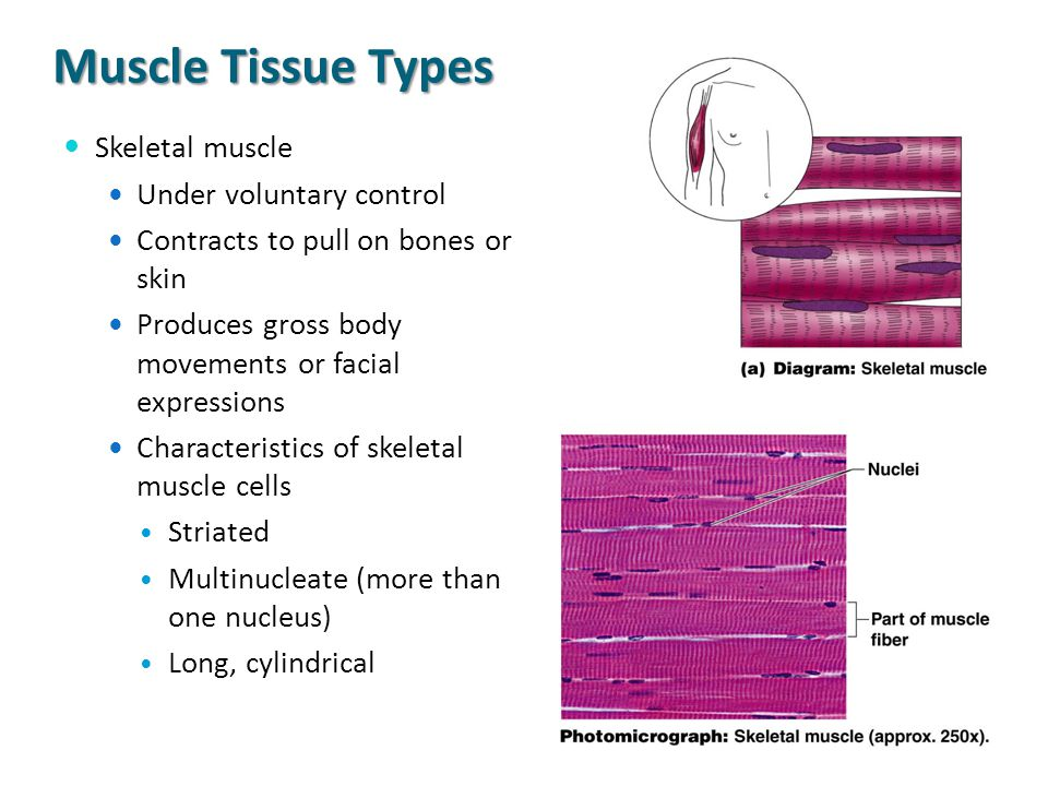 Muscle Tissue Types Skeletal muscle Under voluntary control Contracts to pull on bones or skin Produces gross body movements or facial expressions Cha