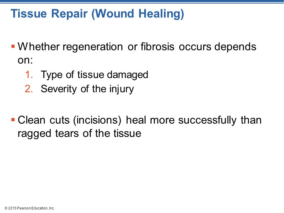 © 2015 Pearson Education, Inc. Tissue Repair (Wound Healing)  Whether regeneration or fibrosis occurs depends on: 1.Type of tissue damaged 2.Severity