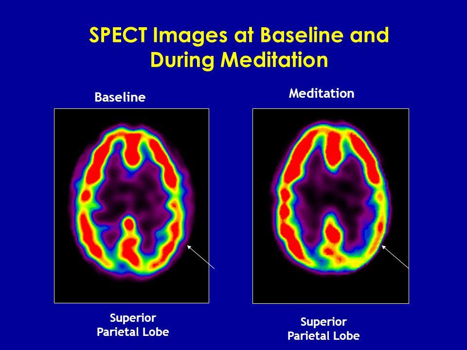SPECT Images at Baseline and During Meditation BaselineMeditation Prefrontal Cortex