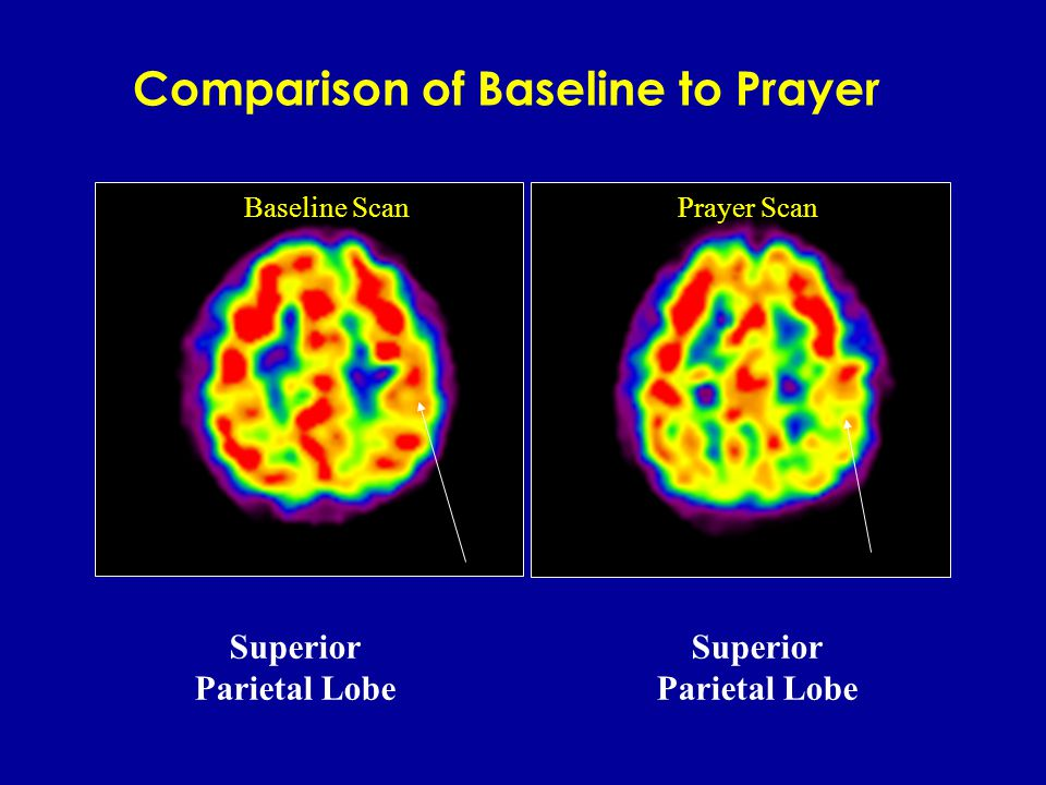 Baseline Scan LIMBIC Comparison of Baseline to Prayer : Limbic inhibition LIMBIC Prayer Scan