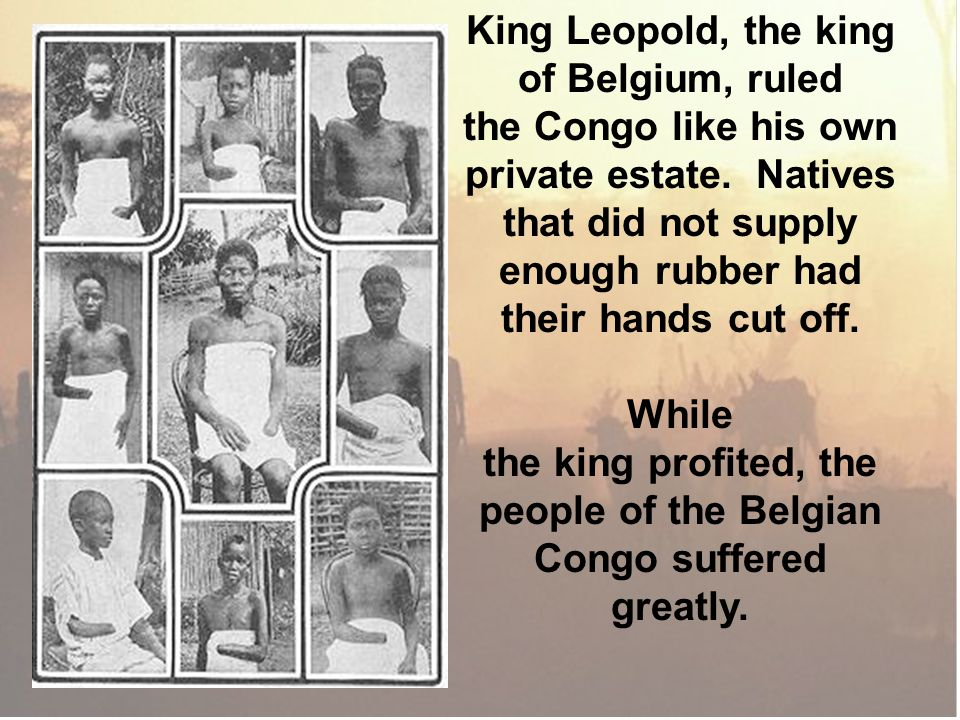King Leopold, the king of Belgium, ruled the Congo like his own private estate. Natives that did not supply enough rubber had their hands cut off. Whi