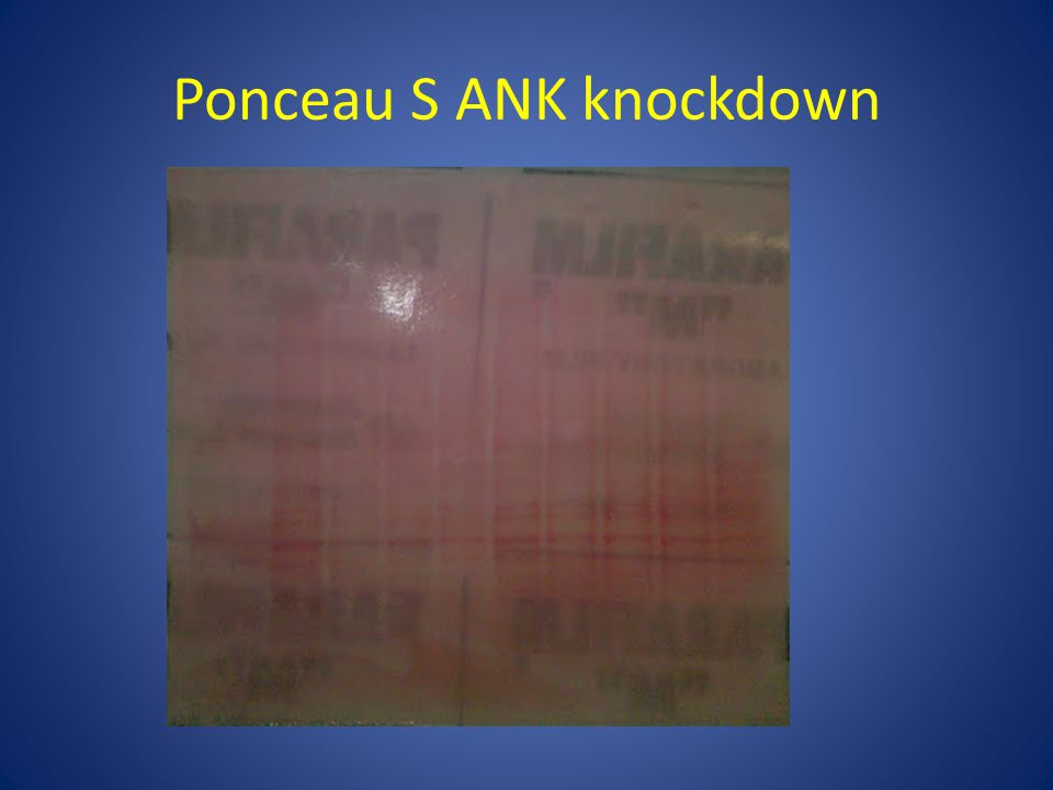 Ponceau S ANK knockdown