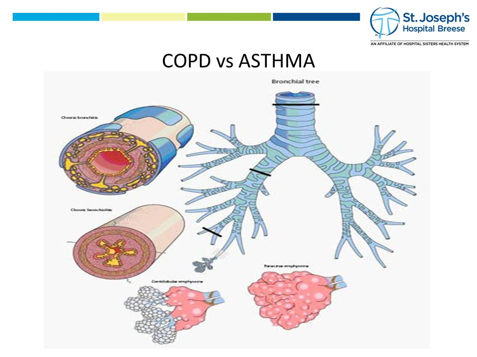 COPD vs ASTHMA