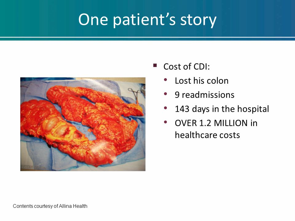One patient's story  Cost of CDI: Lost his colon 9 readmissions 143 days in the hospital OVER 1.2 MILLION in healthcare costs Contents courtesy of Allina Health