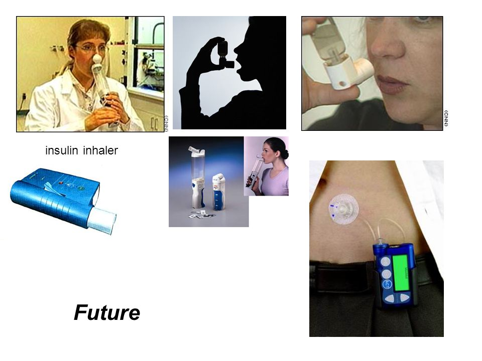insulin inhaler Future