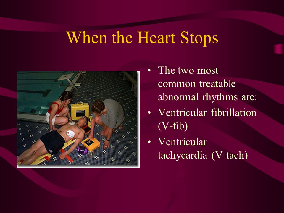 When the Heart Stops The two most common treatable abnormal rhythms are: Ventricular fibrillation (V-fib) Ventricular tachycardia (V-tach)