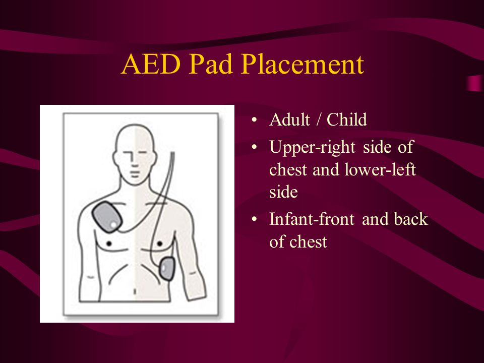 AED Pad Placement Adult / Child Upper-right side of chest and lower-left side Infant-front and back of chest