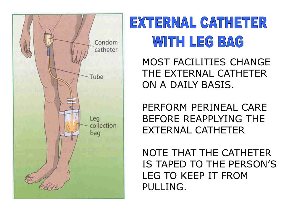 EXTERNAL CATHETER ALSO CALLED A: CONDOM CATHETER TEXAS CATHETER USED FOR THE INCONTINENT MALE PATIENT APPLY TAPE IN A SPIRAL MOTION