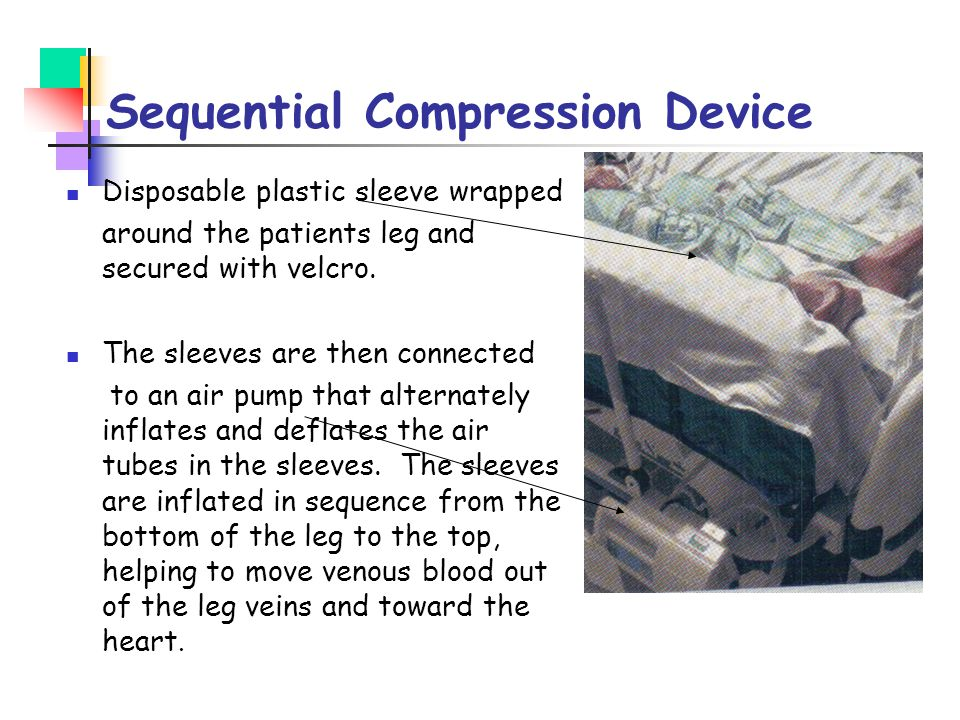 Sequential Compression Device Disposable plastic sleeve wrapped around the patients leg and secured with velcro. The sleeves are then connected to an