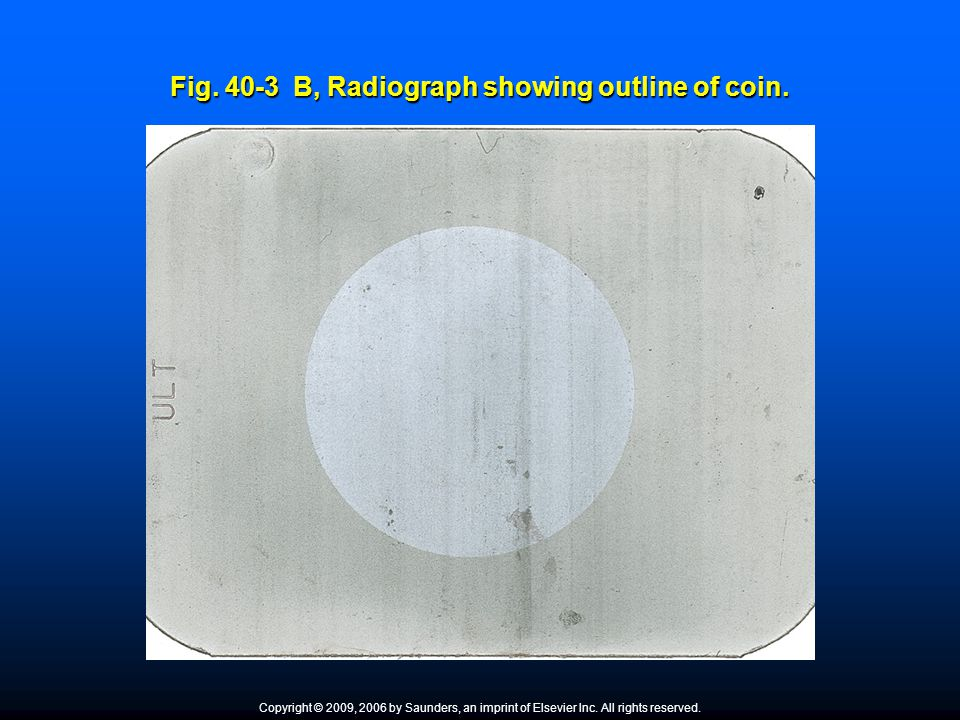 Fig. 40-3 B, Radiograph showing outline of coin. Copyright © 2009, 2006 by Saunders, an imprint of Elsevier Inc. All rights reserved.