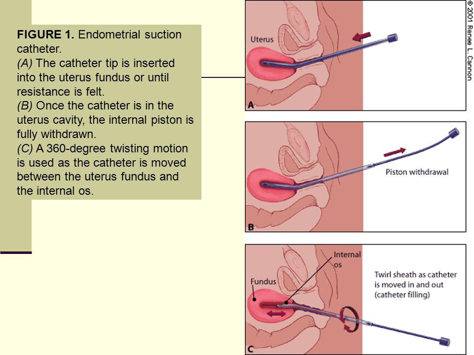 FIGURE 1.Endometrial suction catheter.