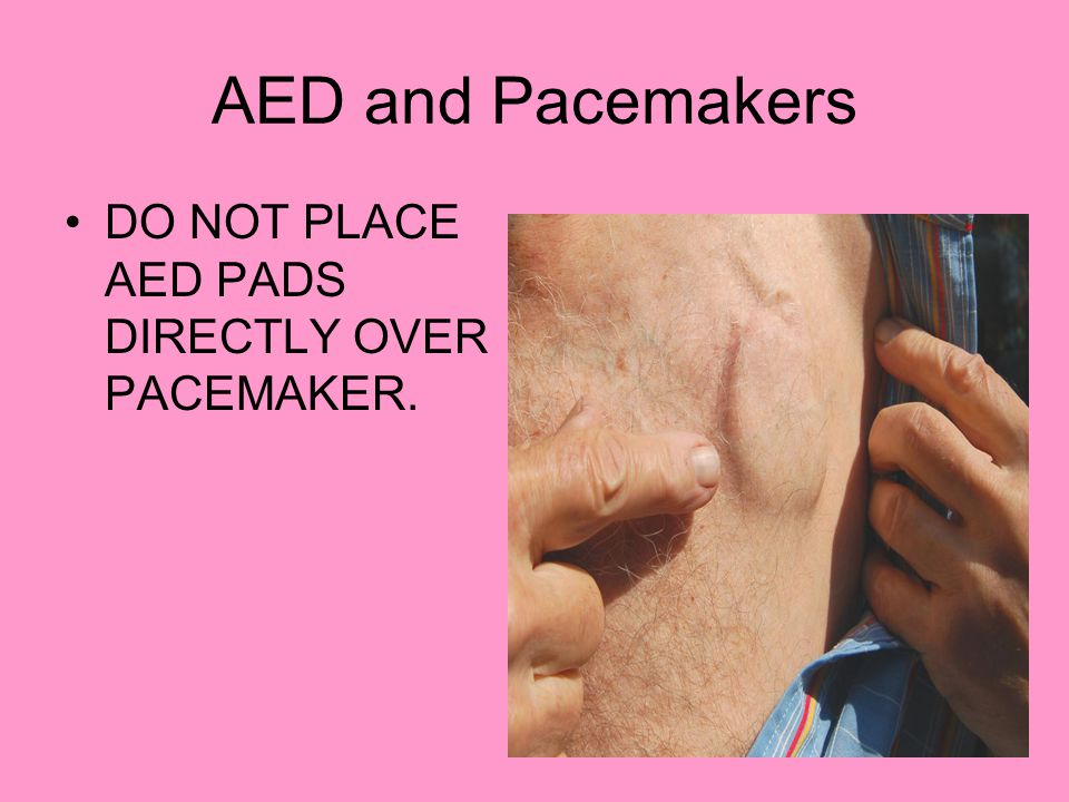 AED and Pacemakers DO NOT PLACE AED PADS DIRECTLY OVER PACEMAKER.
