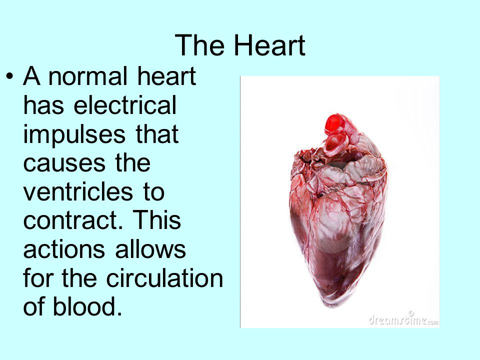 The Heart A normal heart has electrical impulses that causes the ventricles to contract.