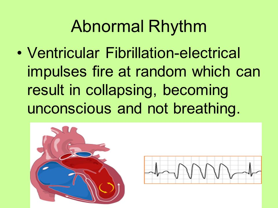 Abnormal Rhythm Ventricular Fibrillation-electrical impulses fire at random which can result in collapsing, becoming unconscious and not breathing.