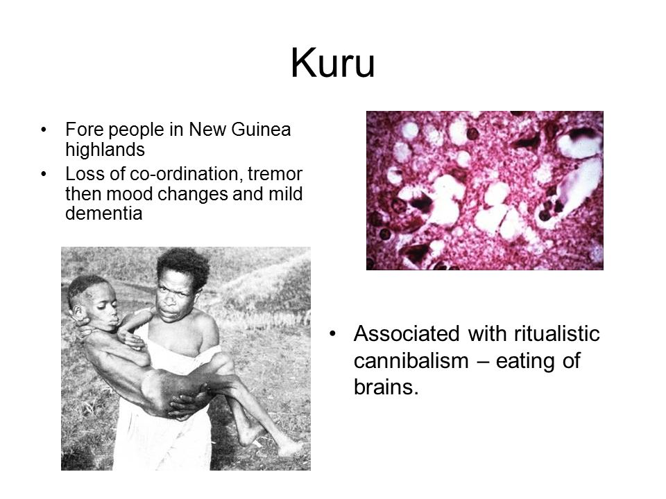 Kuru Fore people in New Guinea highlands Loss of co-ordination, tremor then mood changes and mild dementia Associated with ritualistic cannibalism – eating of brains.