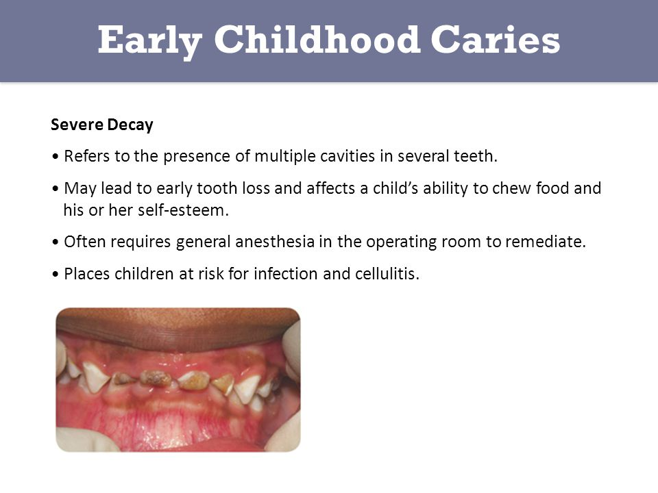 Severe Decay Refers to the presence of multiple cavities in several teeth.