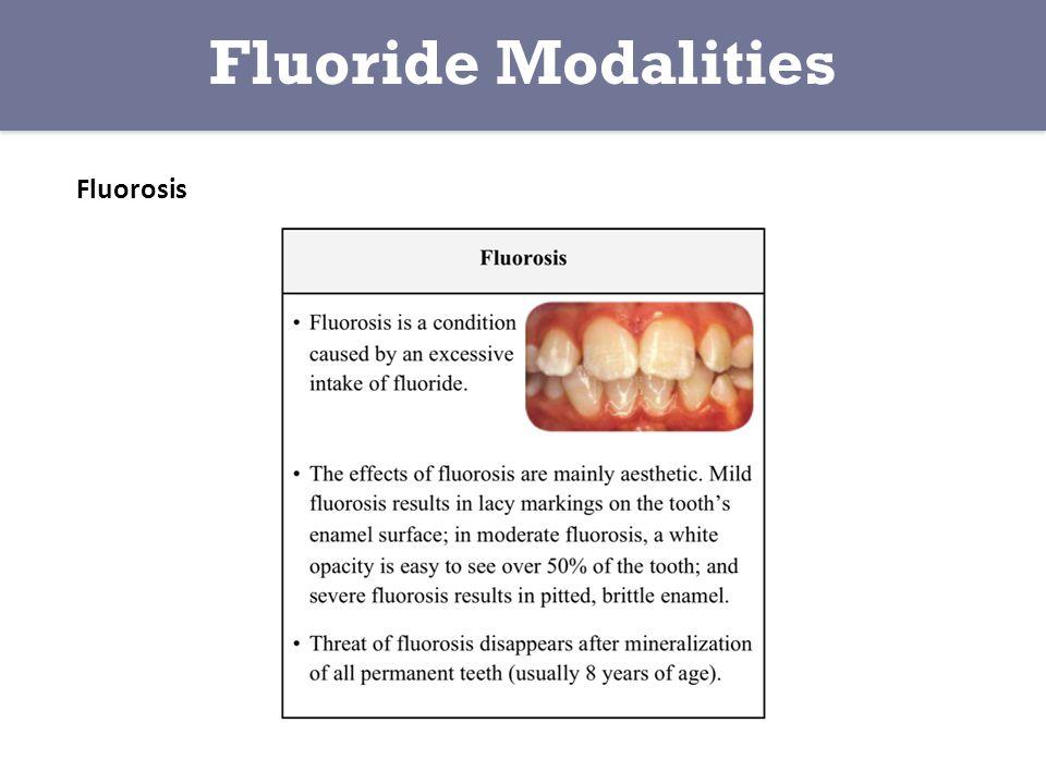 Fluorosis Fluoride Modalities