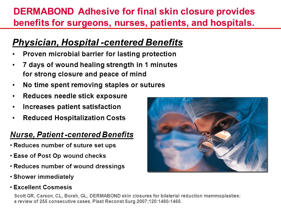DERMABOND Adhesive for final skin closure provides benefits for surgeons, nurses, patients, and hospitals. Physician, Hospital -centered Benefits Prov