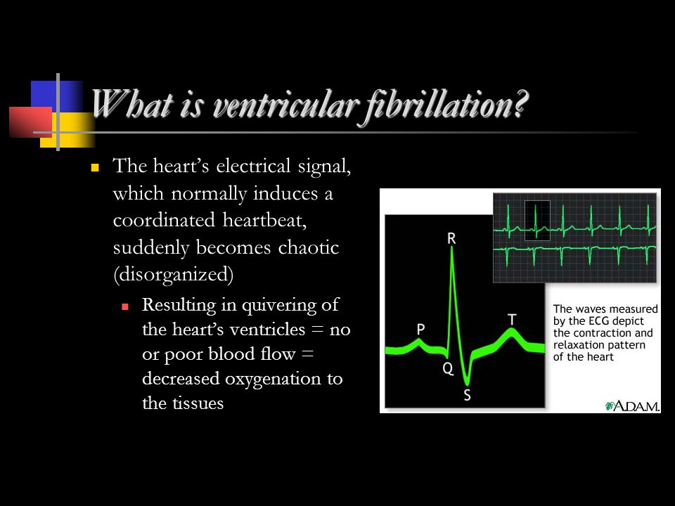 What is ventricular fibrillation.