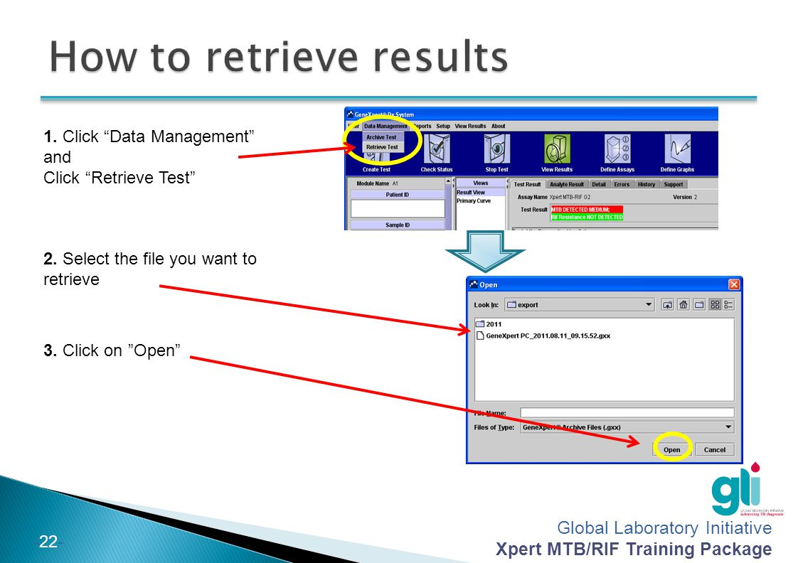 """Global Laboratory Initiative Xpert MTB/RIF Training Package -22- 1. Click """"Data Management"""" and Click """"Retrieve Test"""" 2. Select the file you want to r"""