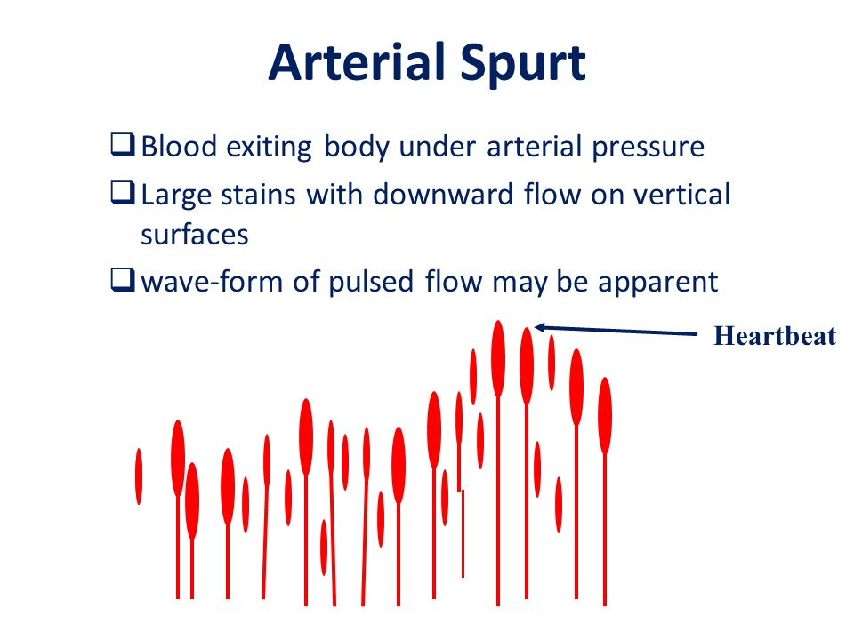 Arterial Spurt  Blood exiting body under arterial pressure  Large stains with downward flow on vertical surfaces  wave-form of pulsed flow may be a