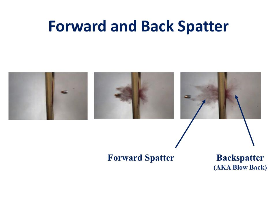 Forward and Back Spatter Forward SpatterBackspatter (AKA Blow Back)