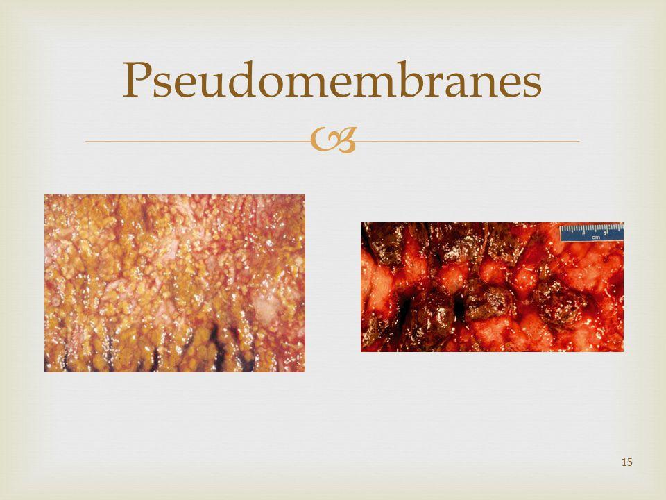  15 Pseudomembranes