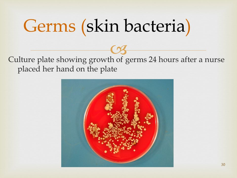  Germs (skin bacteria) Culture plate showing growth of germs 24 hours after a nurse placed her hand on the plate 30