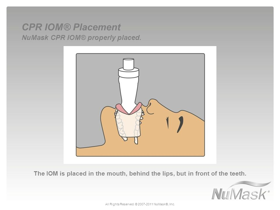 The IOM is placed in the mouth, behind the lips, but in front of the teeth. CPR IOM® Placement NuMask CPR IOM® properly placed. All Rights Reserved. ©