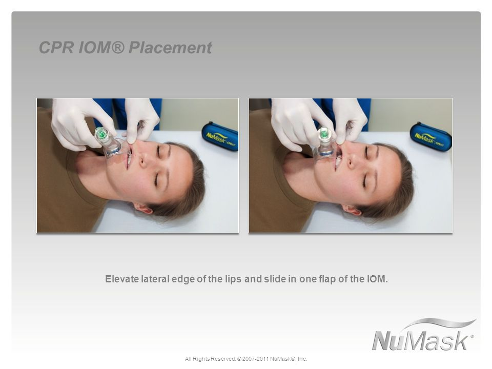 Elevate lateral edge of the lips and slide in one flap of the IOM. CPR IOM® Placement All Rights Reserved. © 2007-2011 NuMask®, Inc.