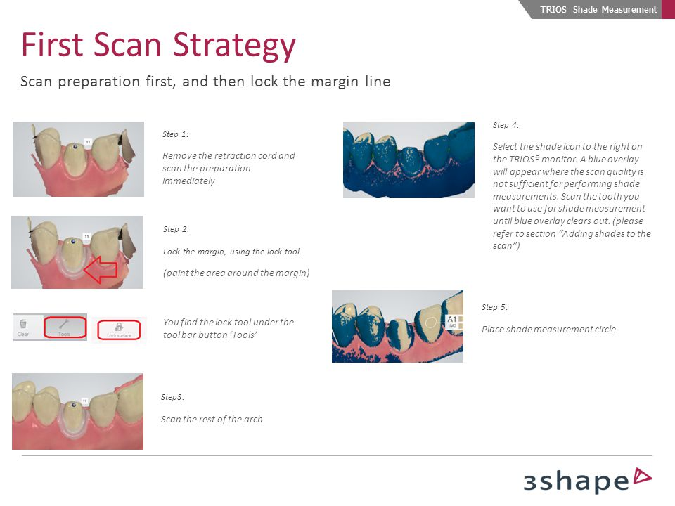 Step 1: Scan arch with cord in place Step 2: Select the shade icon to the right on the TRIOS® monitor.