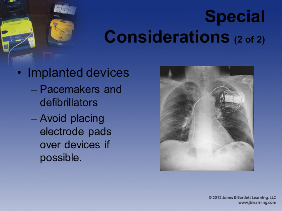 Special Considerations (2 of 2) Implanted devices –Pacemakers and defibrillators –Avoid placing electrode pads over devices if possible.