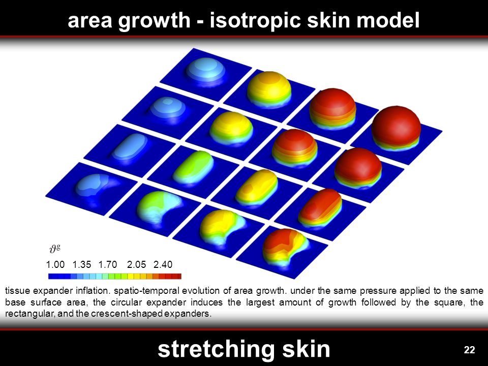 22 stretching skin area growth - isotropic skin model 1.00 1.35 1.70 2.05 2.40 tissue expander inflation.