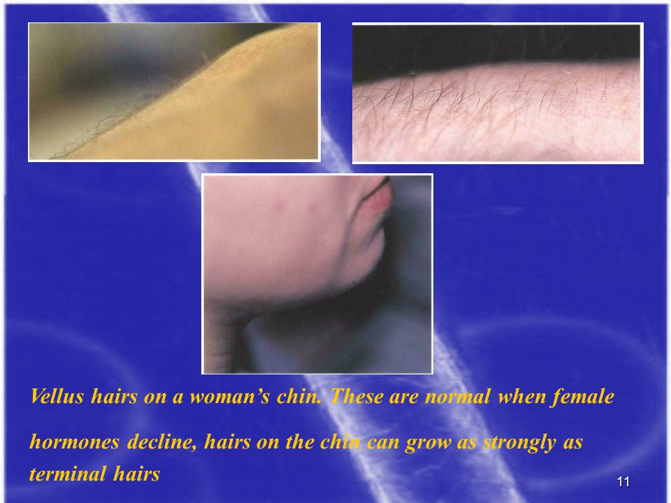11 d Vellus hairs on a woman's chin. These are normal when female hormones decline, hairs on the chin can grow as strongly as terminal hairs
