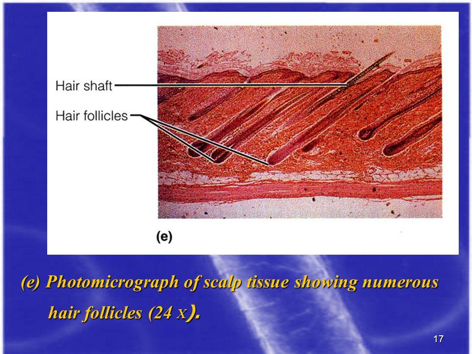 17 (e) Photomicrograph of scalp tissue showing numerous hair follicles (24 X ). hair follicles (24 X ).