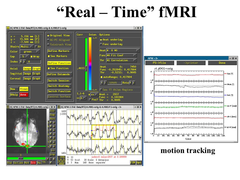 Real – Time fMRI motion tracking
