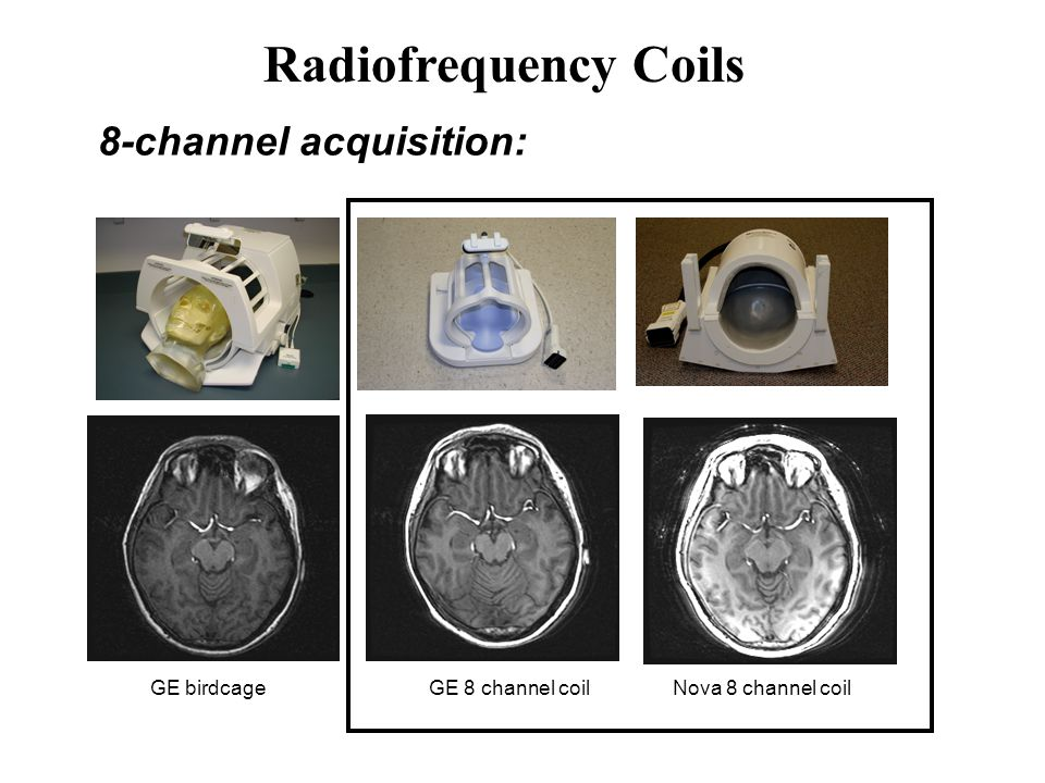 8-channel acquisition: GE birdcageGE 8 channel coilNova 8 channel coil Radiofrequency Coils