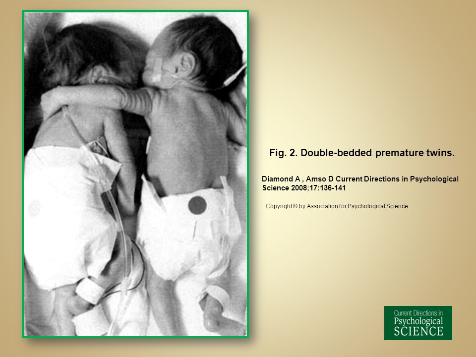 Fig. 2. Double-bedded premature twins. Diamond A, Amso D Current Directions in Psychological Science 2008;17:136-141 Copyright © by Association for Ps