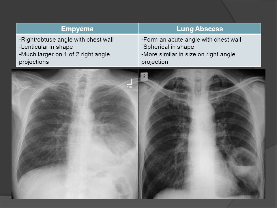 EmpyemaLung Abscess -Right/obtuse angle with chest wall -Lenticular in shape -Much larger on 1 of 2 right angle projections -Form an acute angle with chest wall -Spherical in shape -More similar in size on right angle projection
