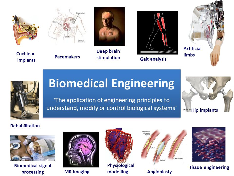 3 Pacemakers Cochlear implants Rehabilitation Deep brain stimulation Artificial limbs Hip implants Gait analysis Biomedical signal processing Tissue engineering MR imaging Angioplasty Physiological modelling Biomedical Engineering 'The application of engineering principles to understand, modify or control biological systems'
