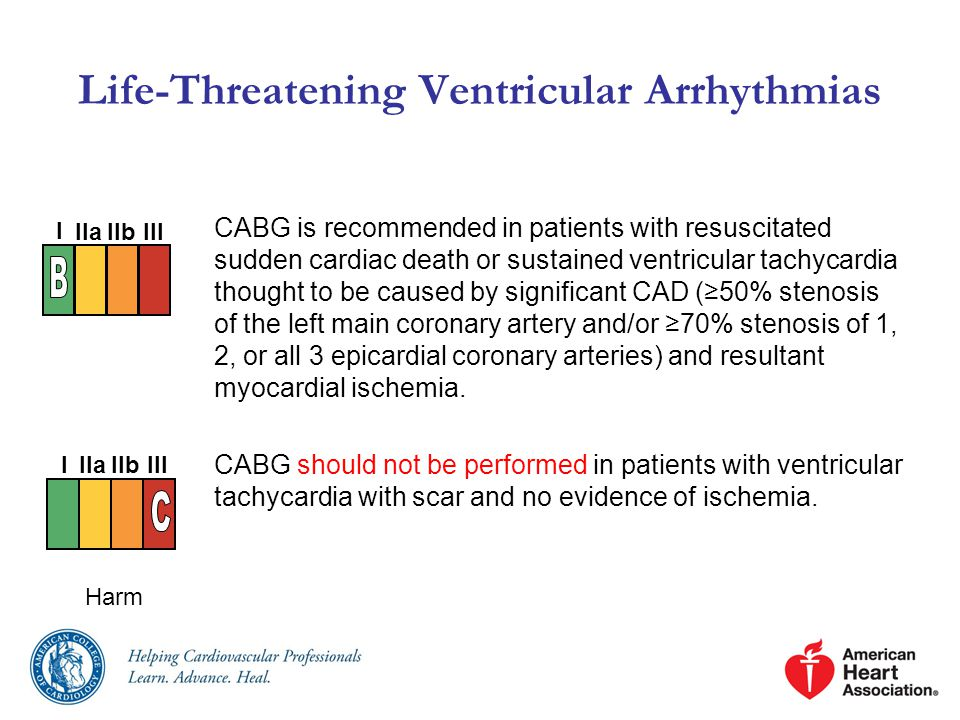 Life-Threatening Ventricular Arrhythmias CABG is recommended in patients with resuscitated sudden cardiac death or sustained ventricular tachycardia thought to be caused by significant CAD (≥50% stenosis of the left main coronary artery and/or ≥70% stenosis of 1, 2, or all 3 epicardial coronary arteries) and resultant myocardial ischemia.