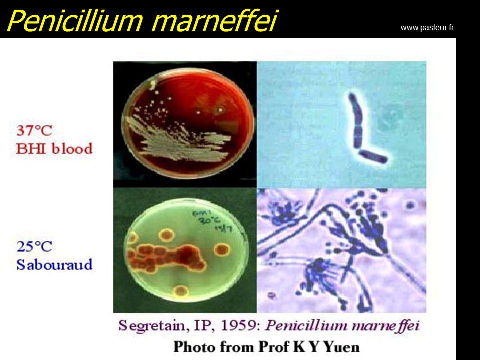 Penicillium marneffei www.pasteur.fr