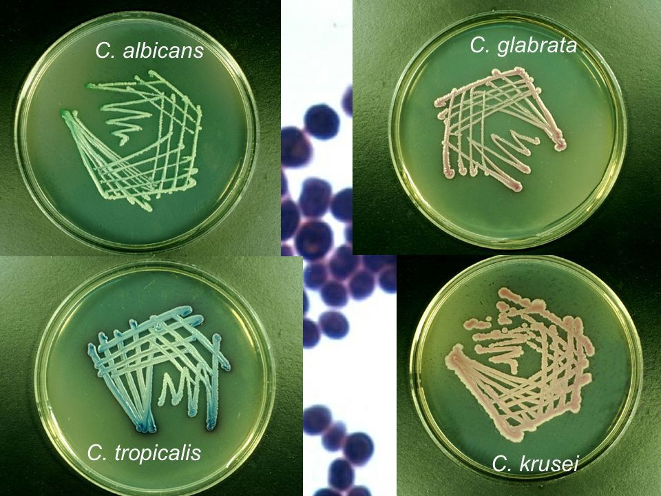 Biochemical identification of yeasts Like bacteria, fungi, too (but not filamentous fungi) may be identified biochemically.