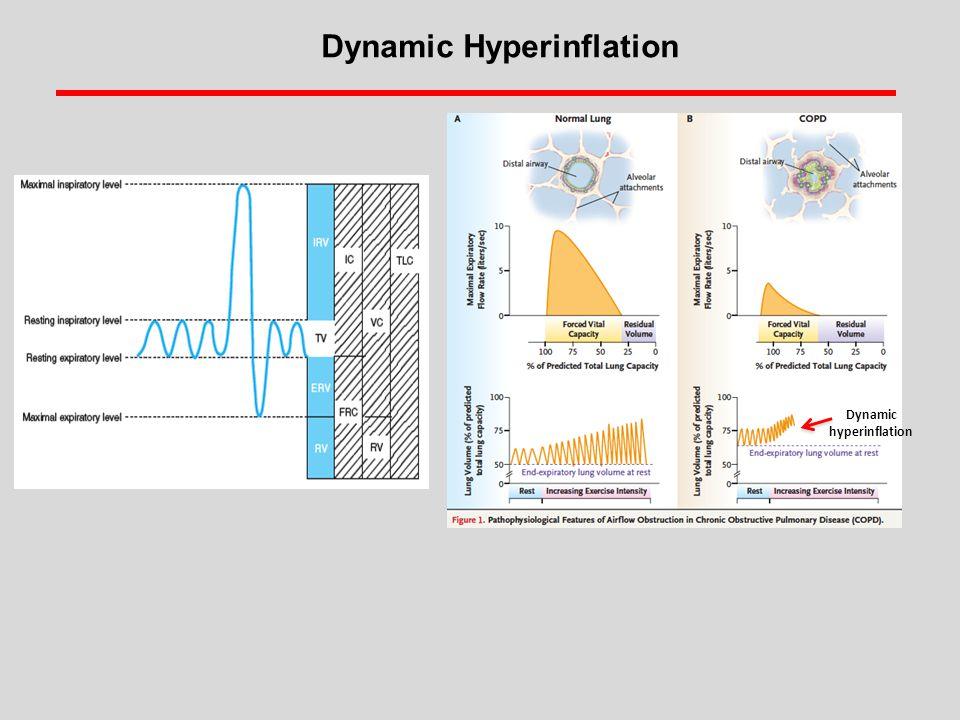 Dynamic hyperinflation Dynamic Hyperinflation