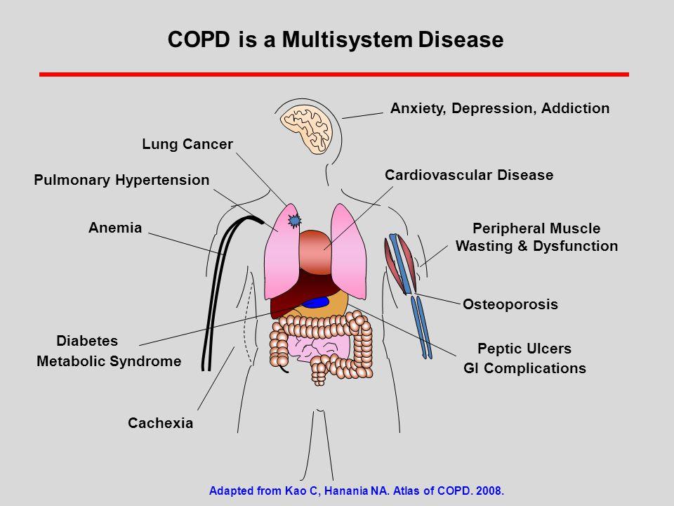 Pulmonary Hypertension Diabetes Metabolic Syndrome Adapted from Kao C, Hanania NA.