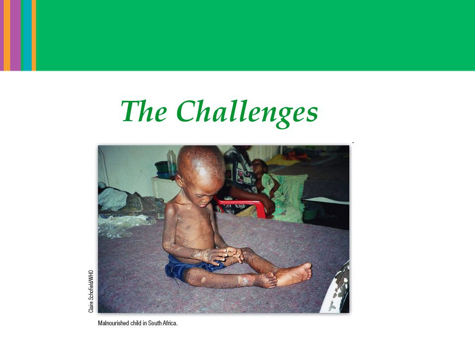 Challenges: Aging has changed the research portfolio for global health in the 21 st century Life Expectancy at Birth (1950 – 2005) Source: Population Division of the Department of Economic and Social Affairs of the United Nations Secretariat, 2005.