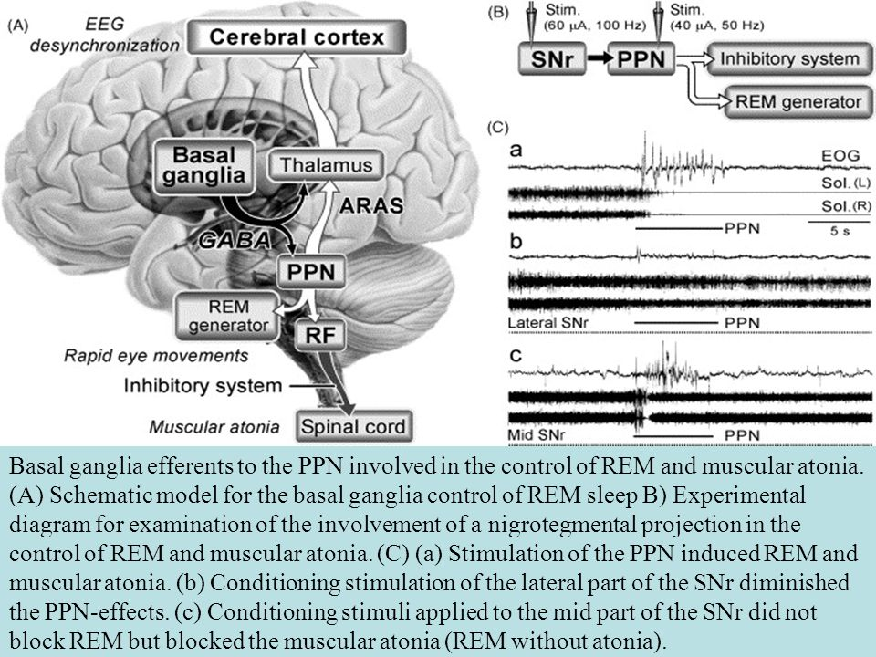 REM Sleep neurons within the pons send inhibitory messages to the spinal cord during REM sleep this message inhibits motor neurons that project to large muscles REM sleep is still observed after damage to the pons but, no inhibition of muscle neurons…
