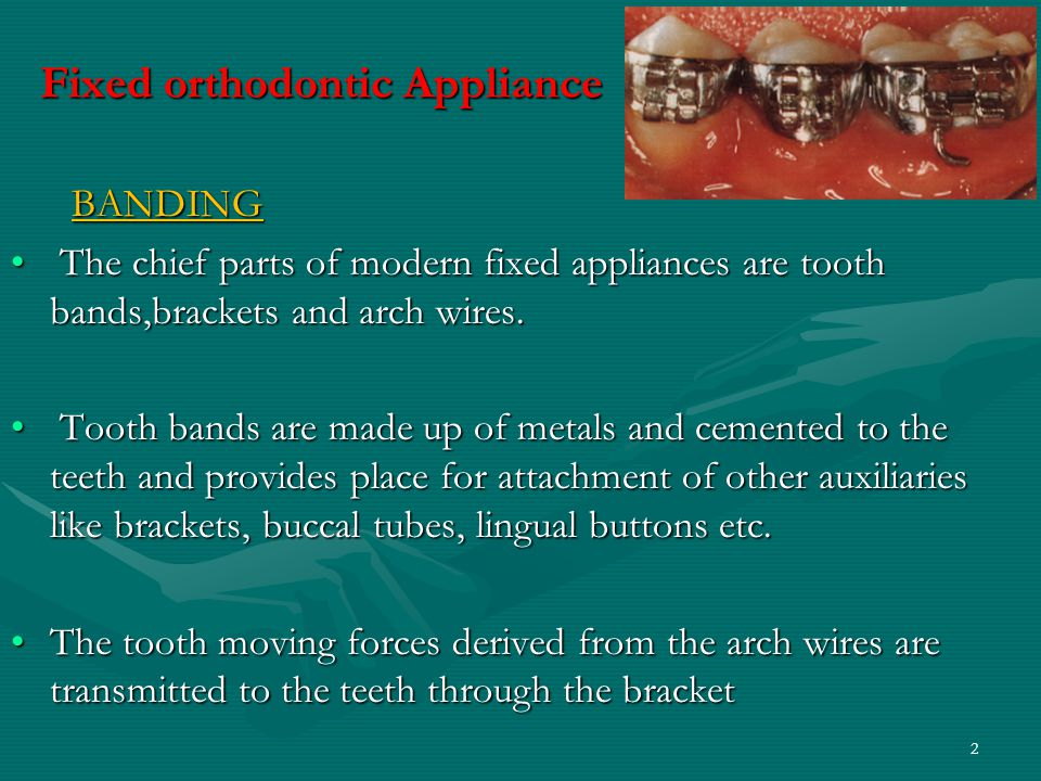 Fixed orthodontic Appliance BANDING BANDING The chief parts of modern fixed appliances are tooth bands,brackets and arch wires.